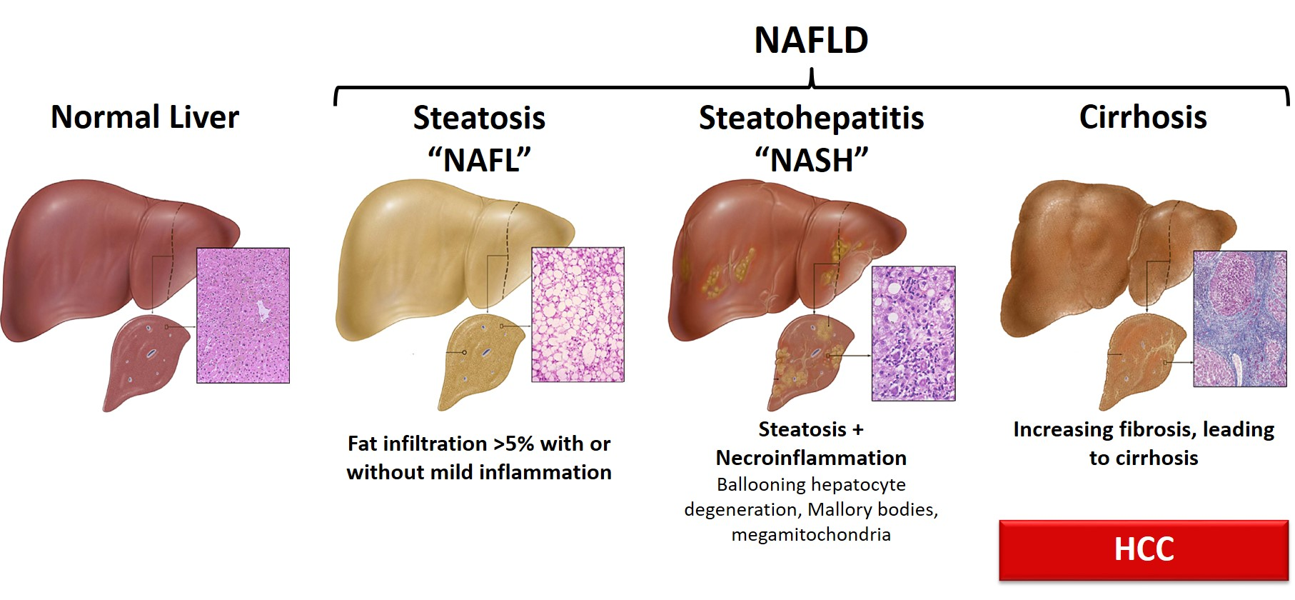 Clinical Update on the Management of Fatty Liver Disease in T2DM Patients