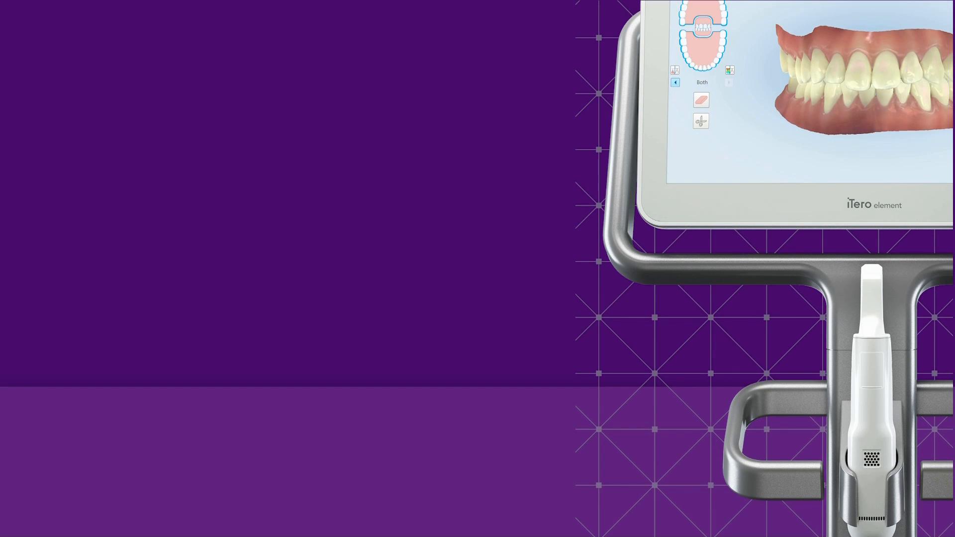 6:36 min: Best Practices for scanning Vivera pre-Debond