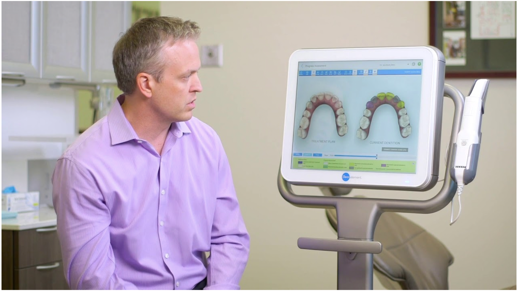 Using Progress Assessment with Invisalign clear aligner patients.