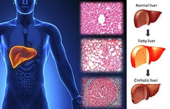 Non-Alcoholic Fatty Liver Disease in Persons with HIV Infection
